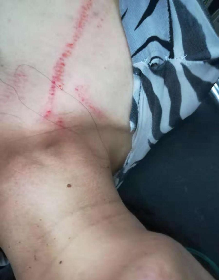 昨天(8月6日)晚龙迪西区发生打人事件